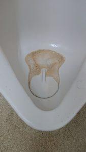 尿石が詰まった小便器