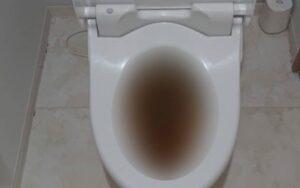 トイレつまり修理|便器を取り外しトイレットペーパーの塊を除去!【佐賀市鍋島の事例】